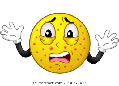 illustration-shocked-smiley-mascot-chickenpox-260nw-730377472.jpg.00373ce055d93d6f8caca5fa7db95f35.jpg
